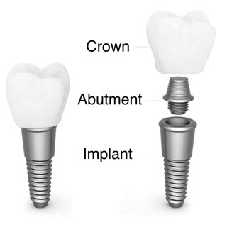 Dental implants elements