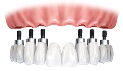 full mouth dental implants