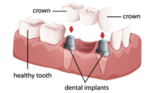 price of dental implants per tooth