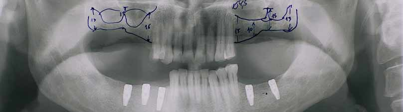 dental implant problems showed by x-rays